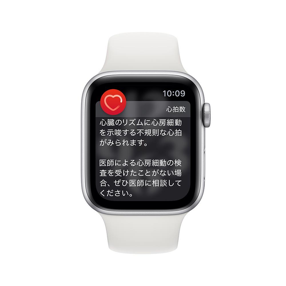 Apple watch alerts heartrate atrialfibrillation longlook